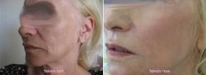 """ד""""ר יאיר גילוני - פילינג לחידוש העור"""