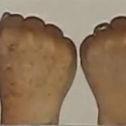 פילינג לחידוש העור הסרת כתמים מידיים