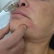 טיפול חדשני למיצוק הפנים, מילוי קמטים והסרת צלקות