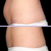איך נולדה השיטה המצליחה להמסת שומן בקור?