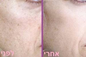 קמטי פגמנטציה - לפני ואחרי הטיפול