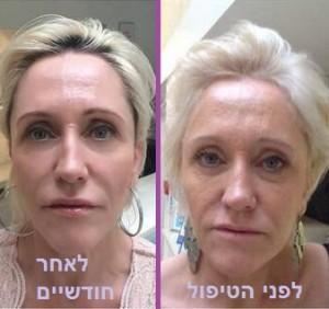 לפני ואחרי מתיחת פנים עדינה
