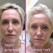 מתיחת פנים בחוטים – ההמלצות לאחר הטיפול