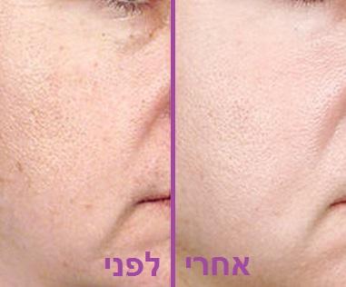 לפני ואחרי טיפול פילינג לפנים