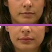 עיבוי שפתיים: הזרקות מילוי או סיליקון?