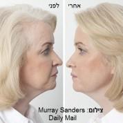 מתיחת פנים בחוטים ללא ניתוח תופסת תאוצה בעולם