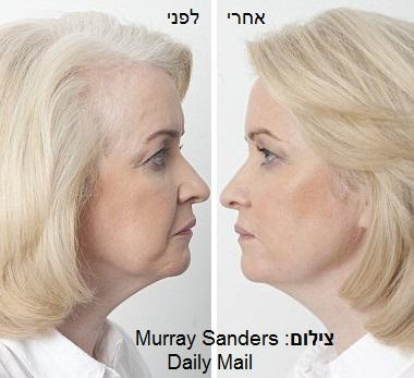 מתיחת פנים ללא ניתוח - לפני ואחרי