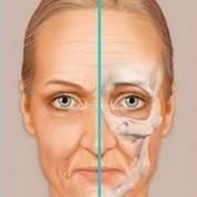 שינויי העור והתחליף לניתוח מתיחת פנים