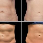 שאלות נפוצות בנוגע לטיפול הצרת היקפים באמצעות המסת שומן בקור