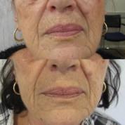 לפני ואחרי: טיפול בקמטי עישון באמצעות Plexr