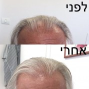 טכניקה חדשנית: השתלת שיער סינטטית