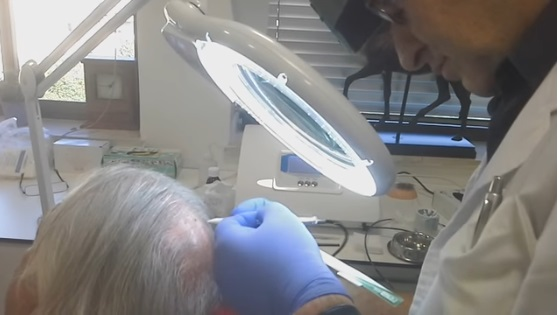 יאיר גילוני - יתרונות השתלת שיער