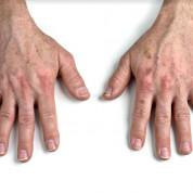 שאלות ותשובות: טיפול להצערת גב כף היד