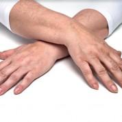 """חדש במרפאת ד""""ר גילוני: שילוב שני חומרים למילוי כפות הידיים"""