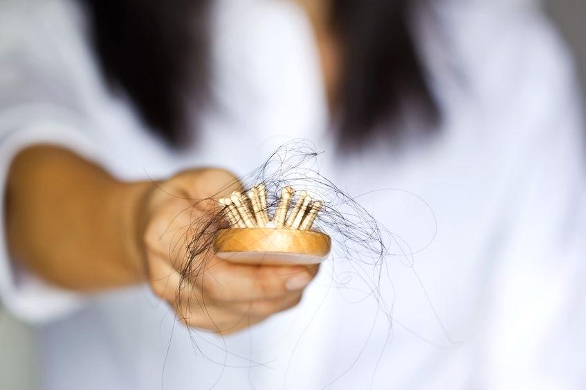 התקרחות ונשירת שיער - בעיה נפוצה מאוד