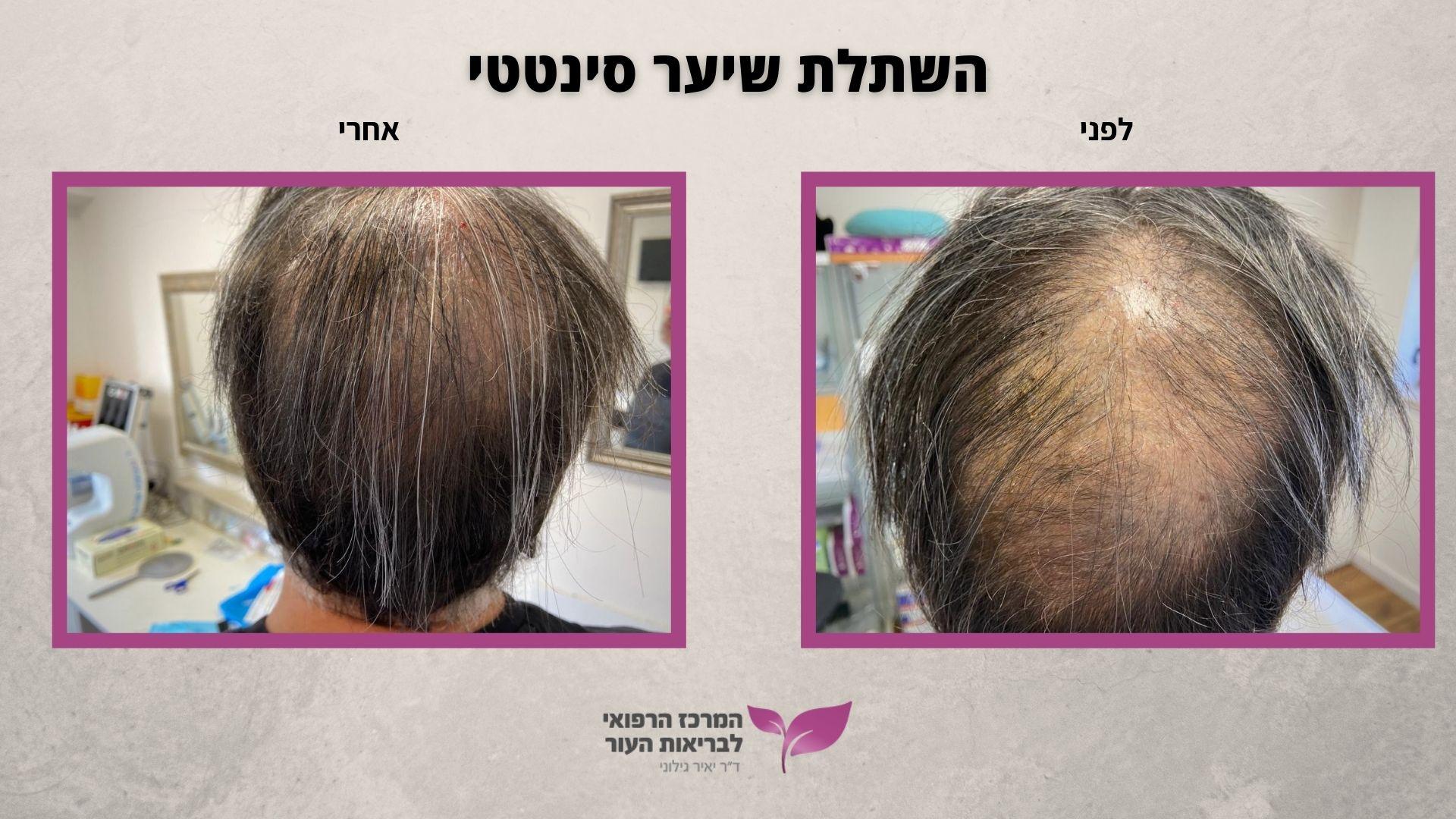 השתלת שיער סינטטי - 500 שיערות