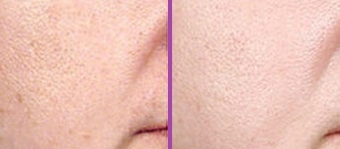לפני ואחרי טיפול פילינג לפנים (מאתר Realself)