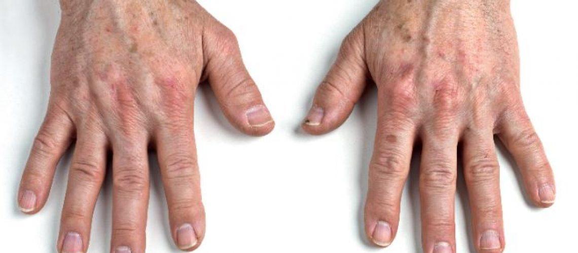 hands gilony - 1