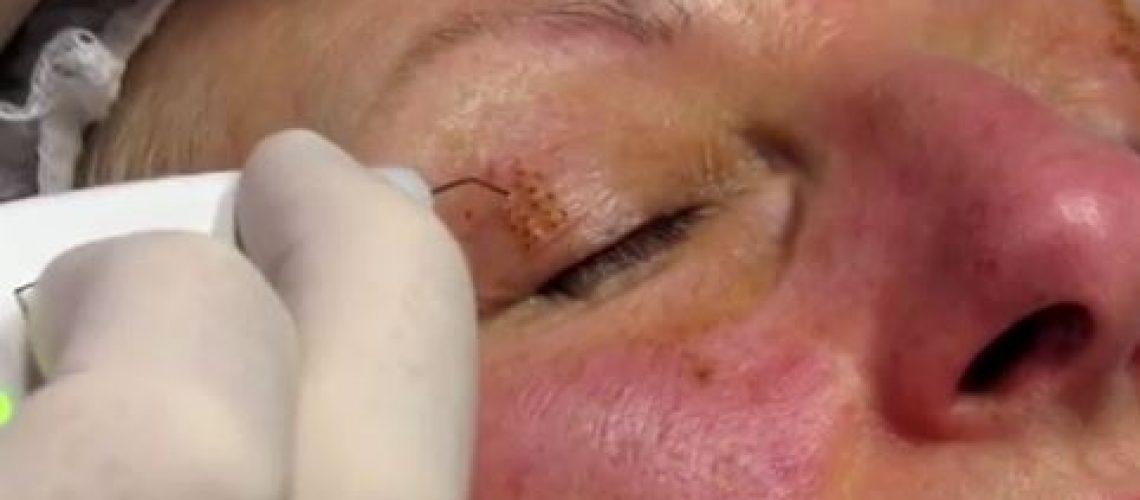 הרמת עפעפיים ללא ניתוח