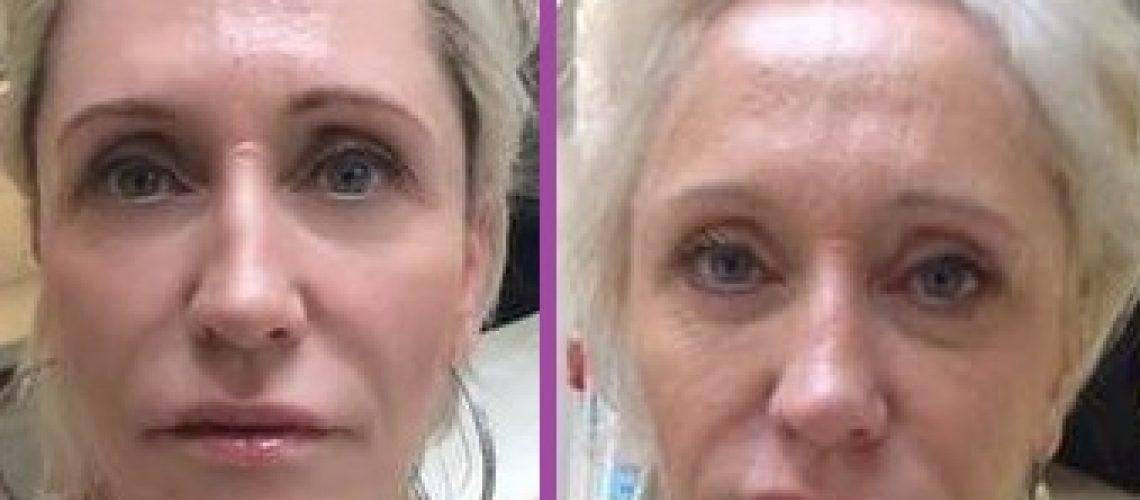 מתיחת פנים בחוטים - לפני ואחרי
