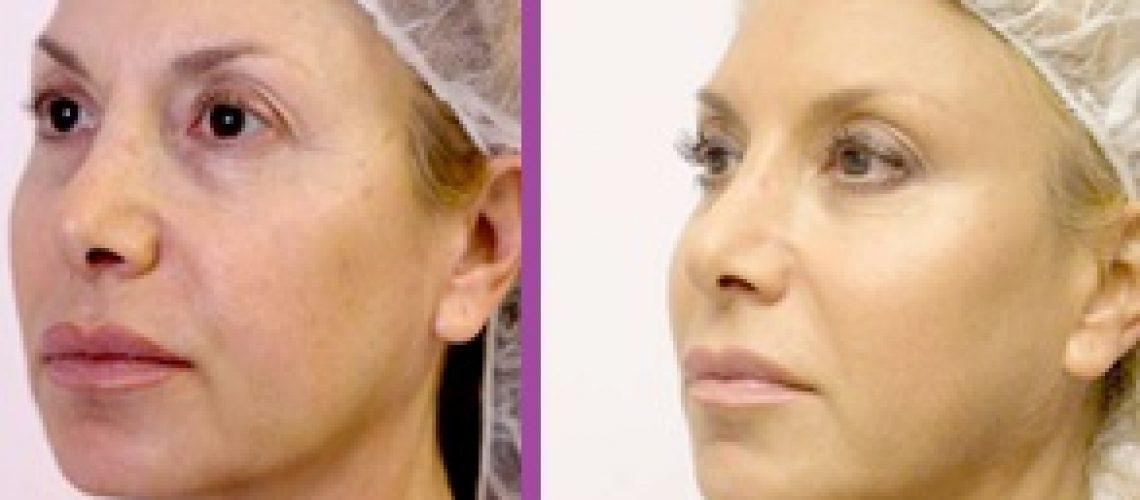 משמאל: זמן קצר לאחר הטיפול, מימין: 4 חודשים לאחר הטיפול
