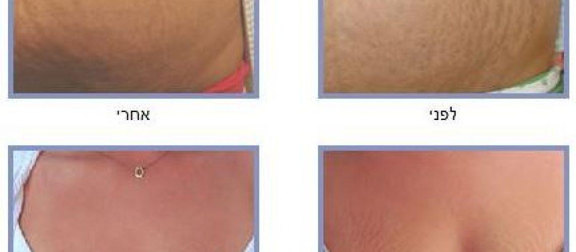 טיפול בסימני מתיחה - לפני ואחרי